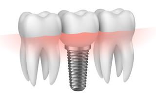 http://www.studiovedovati.dental/wp-content/uploads/2016/03/Implantologia_Bergamo-320x200.jpg