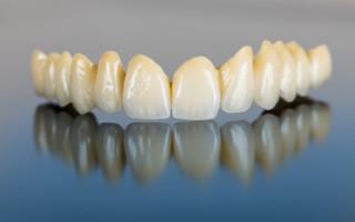 http://www.studiovedovati.dental/wp-content/uploads/2016/03/Protesi-Dentale_Bergamo-320x200.jpg