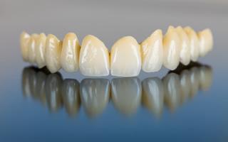 http://www.studiovedovati.dental/wp-content/uploads/2016/03/Protesi-Dentale_Bergamo.jpg